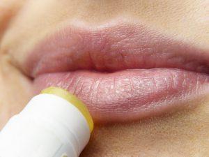 ניתן, לא תמיד,למנוע הרפס בשימוש בקרם הגנה לשפתיים עם החשיפה לגורם המעורר.
